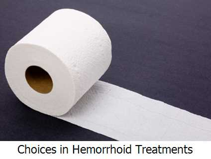 Your Choices in Hemorrhoid Treatments
