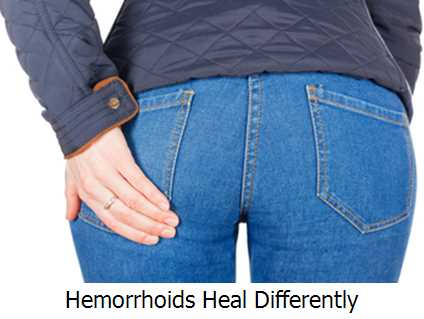 Hemorrhoids Heal Differently