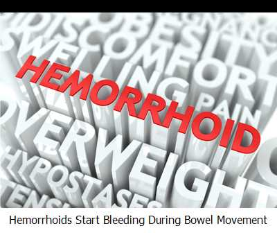 Hemorrhoids Start Bleeding During Bowel Movement
