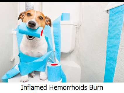 Inflamed Hemorrhoids Burn