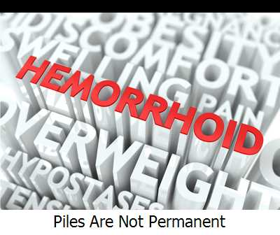 Piles Are Not Permanent