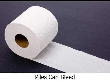 Piles Can Bleed
