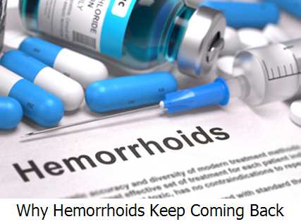 Why Hemorrhoids Keep Coming Back